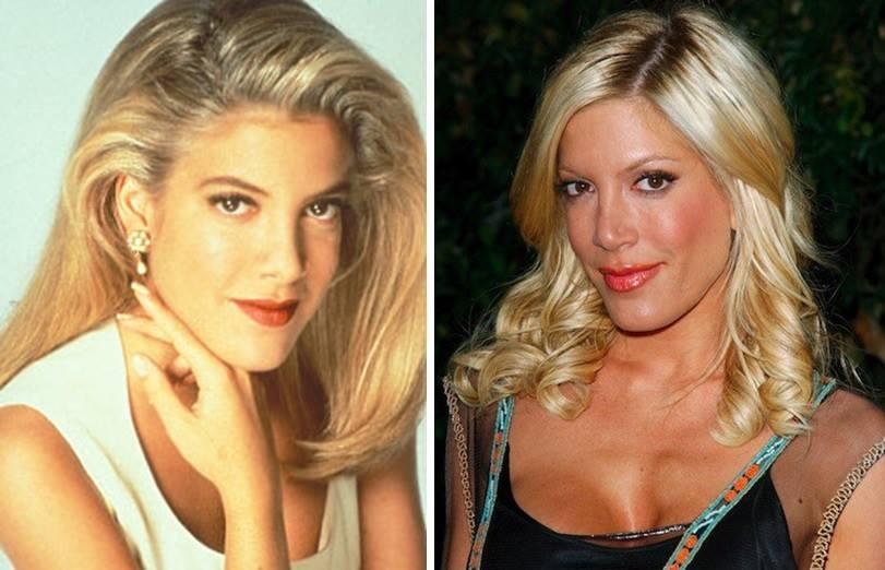 Звезды Беверли-Хиллз, 90210 25 лет назад и сегодня 17